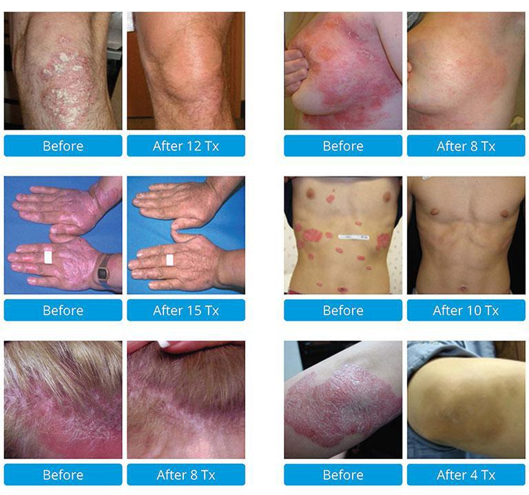 laser treatment for psoriasis)